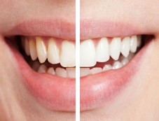 Health Benefits Of Banana Peels  White Teeth Photos