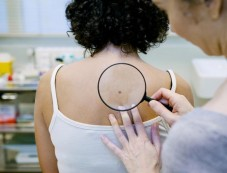 Natural Remedies For Skin Cancer Photos