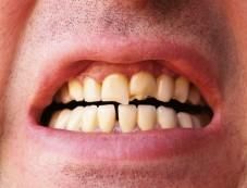 Good For Your Teeth Photos