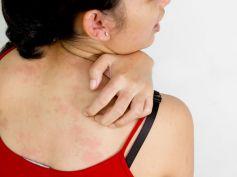 Treats Skin Rashes