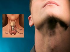 Cure Thyroid