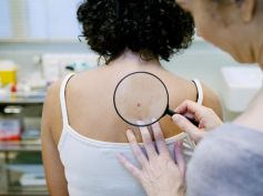 Skin inflammations