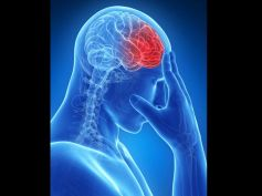 Bleeding In The Brain A Primary Cause For Strokes